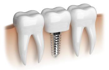 Osseointegration for dental implants