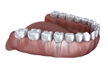 jaw with a dental implant