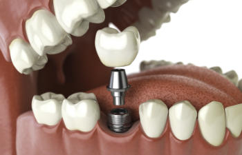a single dental implant