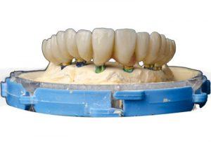 Full Mouth Reconstruction Dental Model