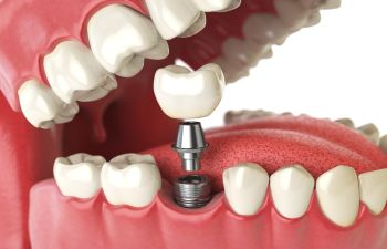 Dental Implant Elk Grove CA